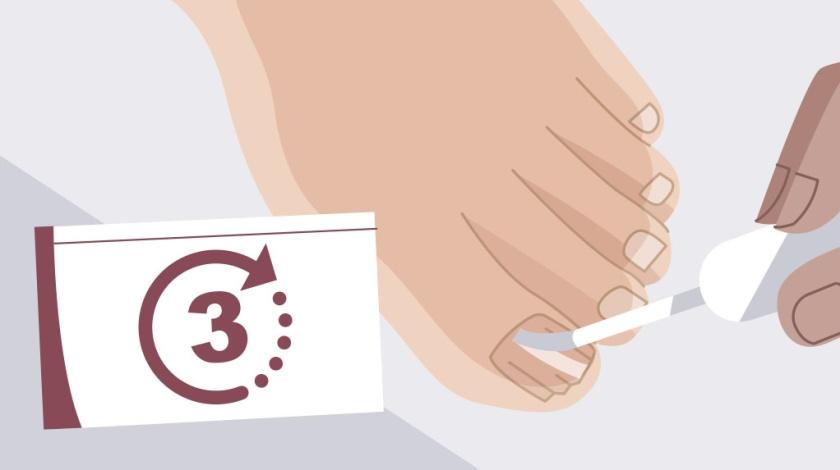 "Nailner美甲修复剂真菌指甲治疗药品TVC二维动画广告策划""7天见效"""